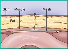 Mesh for Hernia Repair Reduces Recurrence