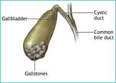 Gall Stones Treatment