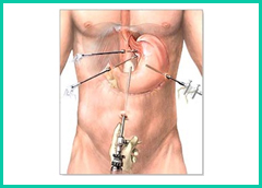 Gastroesophageal Laparoscopic Surgery