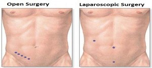 Laparoscopic Appendix