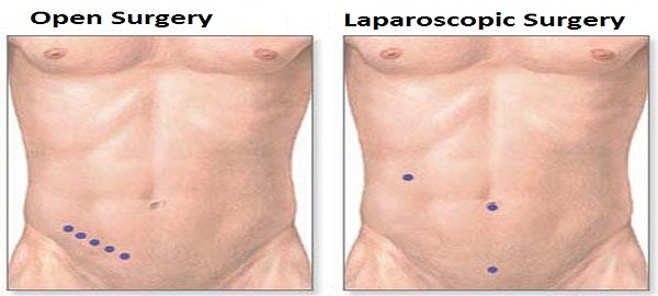 Laparoscopic Appendix